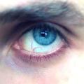 Domácí léčba červených žilek v očích