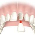 Bolesti mrtvých zubů podkorunkou